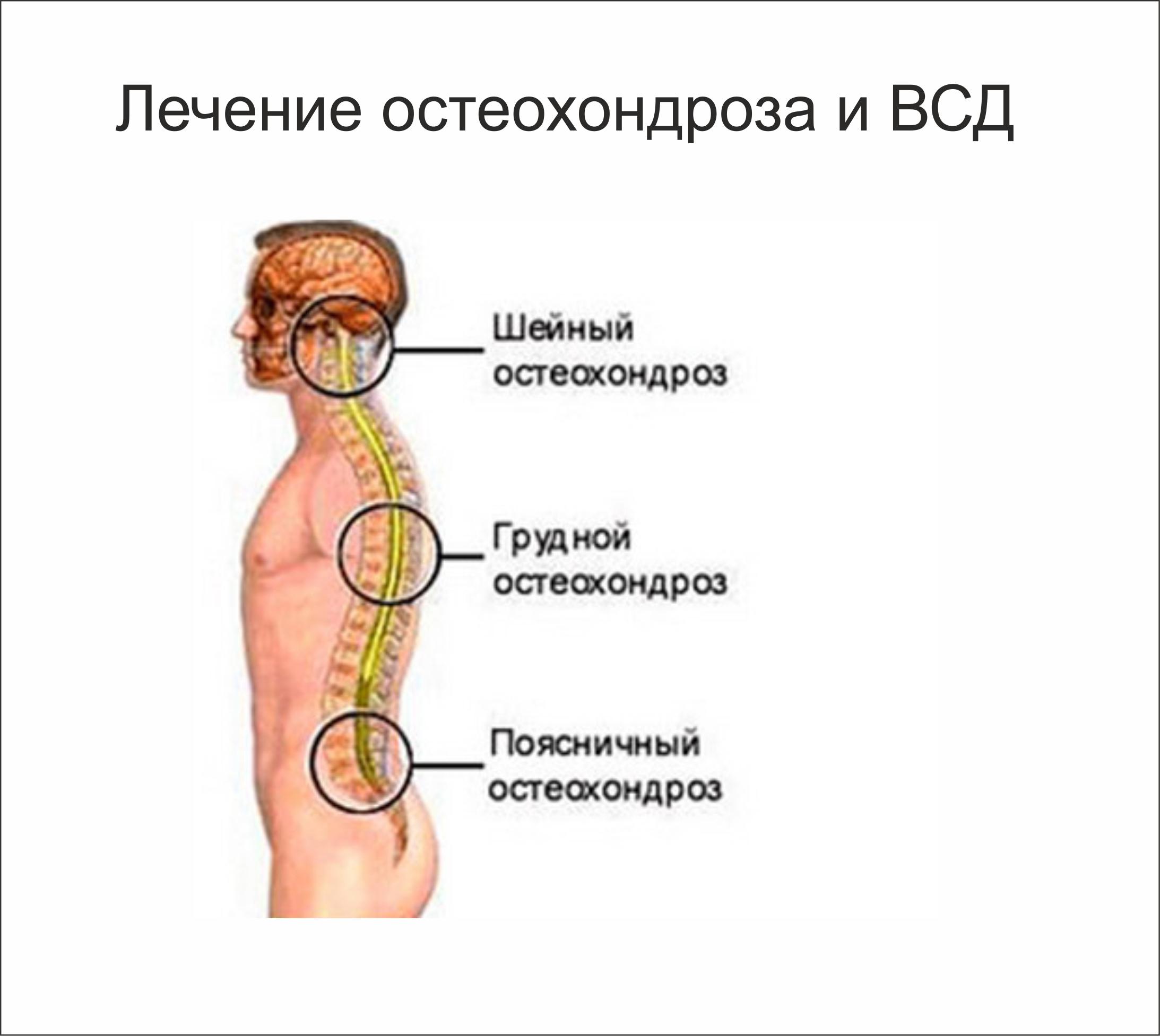 Лечение остеохондроза в грудном отделе в домашних  294